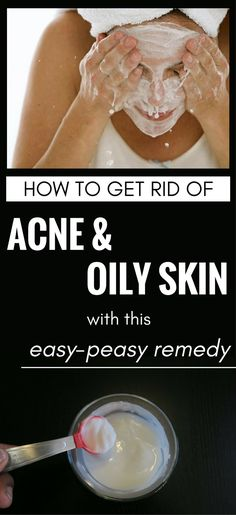 Acne, one of the most common skin disorders can be treated with a simple and inexpensive remedy: baking soda. How can you use it to treat acne? Well, you can find it below, one of the most explicitly remedy to get rid of acne with the help of baking soda. Cleansing your skin Just use …