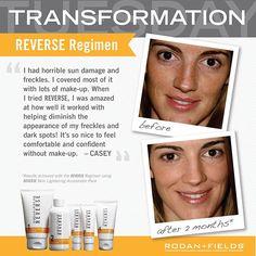 Get clear, glowing skin with R+F Reverse for sun damaged skin. https://jenspector.myrandf.com/Shop #nomorefreckles #sundamage #sunspots