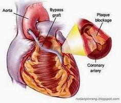 Solusi untuk obat jantung bocor tradisional anda bisa menggunakan ektrak teripang laut yang aman dan ampuh untuk mengobati penyakit jantung bocor tanpa menimbulkan efek samping.