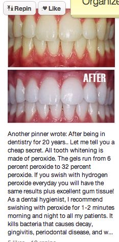 Diy teeth whitening for when my braces come off in a couple months get a free teeth whitening powder link in bio solutioingenieria Image collections
