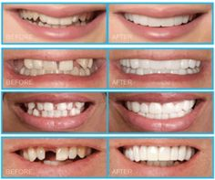 Next Dental Crowns Before And After Life Laser Dentistry, Cosmetic Dentistry, Teeth Implants, Dental Implants, Dental Health, Dental Care, Dental Braces, Oral Health, Dentist Reviews