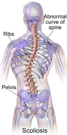 Using Hot Stone Massage for Scoliosis