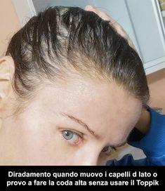 Alopecia Androgenetica Femminile: Caduta, Diradamento e Perdita Capelli Nelle Donne: La Mia Storia! - Clelia Mattana Recipes