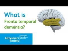 What is Fronto Temporal Dementia? Alzheimer's Society Dementia Brain Video