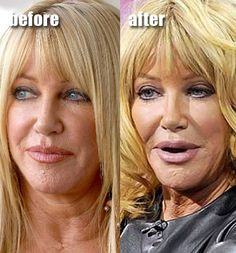 Suzanne Somers Facelift Plastic Surgery Before After – www.celeb-surgery… Suzanne Somers Facelift Plastic Surgery Before After – www. Bad Plastic Surgeries, Plastic Surgery Gone Wrong, Photoshop, Divas, Nada Personal, Suzanne Somers, Implant, Celebrity Plastic Surgery, Under The Knife