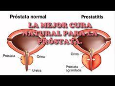 Amada Inés: La mejor cura para la próstata en todo el mundo, n...