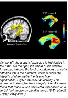 Brain Scans May Help Diagnose Dyslexia - Pinned by @PediaStaff – Please Visit  ht.ly/63sNt for all our pediatric therapy pi