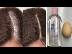 Hello Every Body My Video Show About: Traditional Beauty Tips White hair to black hair naturally in just 4 minutes is always working at home White Hair, Black Hair, Grey Hair Remedies, Corporate Style, Hair Health, Beauty Hacks, Beauty Tips, Natural Hair Styles, Hair Care