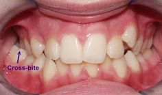 This is a problem as the persistence of a crossbite can ruin teeth, and also cause TMJ problems and jaw pain later on in life. Teeth Alignment, Crooked Teeth, Family Dentistry, Dental Care, Treats, Health, Morristown Tn, Quad, London
