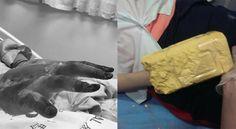 誤把石膏粉當海藻粉賣!害少女手燙傷慘截肢 - https://kairos.news/65576