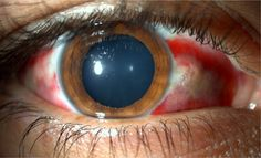 For correct and swit diagnosis and relief from any eye ailment, contact us at MurdochEye. Diseases Of The Eye, Vitreous Humour, Eye Center, Healer, The Help, Herbalism, Eyes, Drugs, Crying