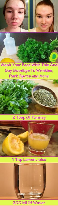Apply This Lotion on your Face and Say Goodbye to Wrinkles, Dark Spots and Acne!