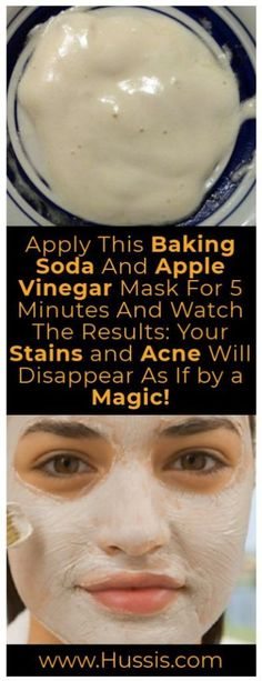 Apply This Baking Soda And Apple Vinegar Mask For 5 Minutes And Watch The Results: Your Stains And Acne Will Disappear As If By A Magic - Pure Natural Skin Healthy Tips, Healthy Skin, Healthy Beauty, Beauty Hacks For Teens, Beauty Hacks Hair, Apple Vinegar, Cider Vinegar, Salud Natural, Image Skincare