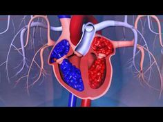 Glenn Barnhart discusses the different types of heart surgeries performed at Swedish Medical Center. Types Of Heart Surgery, Swedish Medical Center, Health And Wellbeing, Human Body, Youtube, School, Teaching, Education, Youtubers