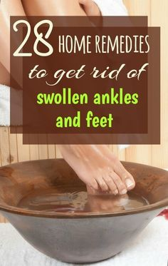 Natural Remedies For Swollen Feet Are you coping with swelling? Check out some of these natural remedies to help relieve swollen feet and ankles! Natural Headache Remedies, Natural Health Remedies, Natural Cures, Holistic Remedies, Herbal Remedies, Foot And Ankle Swelling, Pregnancy Spa, Pregnancy Outfits, Massage