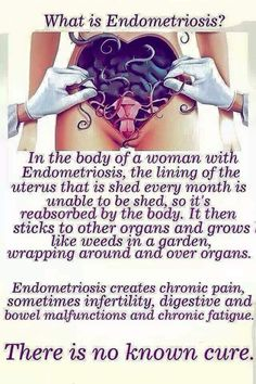 Naturally Eliminated Ovarian Cysts - More Than Women Worldwide Have Been Successful in Treating Their Ovarian Cysts In Days, and Tackle The Root Cause Of PCOS Using the Ovarian Cyst Miracle™ System! Endometriosis Quotes, Endometriosis Pain, Endometriosis Awareness, Chronic Pain, Chronic Illness, Arthritis, Mon Combat, Types Of Ovarian Cancer, Diets