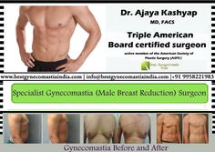 Dr. Ajaya Kashyap Specialist Gynecomastia (Male Breast Reduction) Surgeon. Know more about this procedure at: www.bestgynecomastiaindia.com Contact Us ☎ (995) 822.1983  (995) 822.1982 (995) 822.1981 From India #CosmeticSurgery #Cosmetic #Surgery #GynecomastiaIndia #GynecomastiaDelhi #Delhi #India #ManBoobs #Chest #GoodChest #Career #Profession #JobSeekers #EnhancingLooks #GoodLooks #PerfectBody #PerfectShape #MensHealth #MaleBeauty #FatRemoval #MaleBreastReduction #ExpertSurgeon