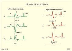 Bundle branch block is a block of the right or the left bundle branches. The signal is conducted first through the healthy branch and then it is distributed to the damaged side. This distribution takes more time than usual, so the QRS-complex is wider tha Nursing School Tips, Nursing Notes, Nursing Tips, Nursing Schools, Bundle Branch Block, Ekg Interpretation, Cardiac Rhythms, Flight Nurse, Flight Paramedic