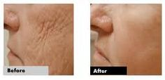 With Adult Stem Cell Technology by Jeunesse.....it is now possible to turn back the hands of time and look young again :-) Ask me how to get a sample of this great product. www.clreeder.jeunesseglobal.com
