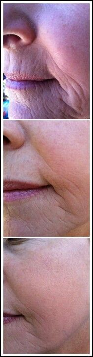 Before and After with Nerium..amazing results!  www.theattic.nerium.com