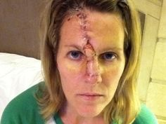 Champlin Woman Warns Of The Consequences OfTanning - CBS Minnesota. This is my AMAZING DAUGHTER....SO PROUD OF HER.....SHE IS FULL OF STRENGTH AND DETERMINATION....WANTS TO HELP OTHERS AND WARN THEM OF THE DANGERS OF THE SUN AND TANNING BOOTHS.  Just click on picture and follow the prompts...