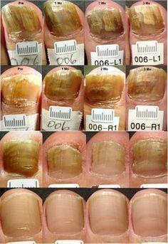 除菌スプレーは猛毒?「カビ・ダニ」を急速で死滅させる「天然スプレー」とは?|水虫(真菌)にティートリーを塗って、経過を見た画像です。 水虫が綺麗に治ってゆく様子です。