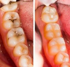 Top Oral Health Advice To Keep Your Teeth Healthy – Best Teeth Whitening Techinque Wellness Tips, Health And Wellness, Health Fitness, Reverse Cavities, Dental Photography, Best Teeth Whitening, Teeth Care, Natural Health Remedies, Oral Health