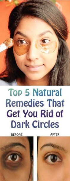 Top 5 Natural Remedies That Get You Rid of Dark Circles BY Many of us are facing the problem of dark circles, those bluish areas under the eyes. Long-term home remedies are more effective and healthier than Natural Beauty Tips, Diy Beauty, Beauty Care, Organic Beauty, Beauty Skin, Health And Beauty, Diy Peeling, Anti Aging, Dark Circle Remedies