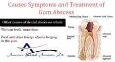 Know Causes, Symptoms and Treatment of Gum Abscess