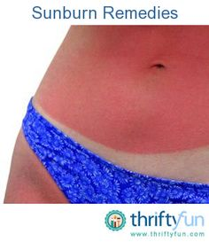 This is a guide about remedies for a sunburn. Prevention is the best remedy. But if you find yourself with a sunburn, it is best to treat it as soon as possible.