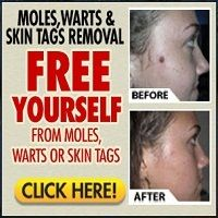 Warts Skin Tags or Moles How to tell the difference