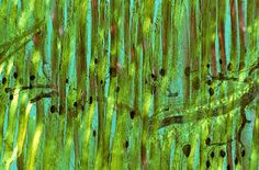 Medial gastrocnemius muscle in a rat | 1988 Photomicrography Competition | Nikon Small World