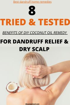 It is one of the best dandruff DIY home remedies to get rid of the dandruff problem. #dandruff #dryscalp #hair #natural #naturalremedies #remedies How To Cure Dandruff, Oils For Dandruff, Hair Dandruff, Dry Scalp Remedy, Home Remedies For Dandruff, Rosacea Remedies, Hair Remedies, Diy Hair Mask For Dry Scalp