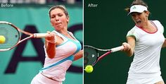Top tennis player Simona Halep had gone to extreme measures to save her tennis career by going for breast reduction surgery, to go from 34DD to 34C.