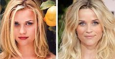 Celebrity Reese Witherspoon before and after plastic surgery images nose job / r. - - Celebrity Reese Witherspoon before and after plastic surgery images nose job / rhinoplasty. Celeb nosejob images before and after plastic surgery <! Reese Witherspoon, Plastic Surgery Pictures, Bulbous Nose, Rhinoplasty Before And After, Celebs Without Makeup, Celebrities Before And After, Celebrity Plastic Surgery, Botox Injections, Operation