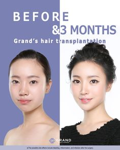 The Grand Plastic Surgery Korea brings natural beauty through understanding each patient's needs and integrative analysis by the best doctors in Korea. Forehead Reduction Surgery, Plastic Surgery Korea, Dermatologist Skin Care, Surgery Doctor, Beauty Clinic, Best Doctors, Beauty Spa, Ad Design, Hairline