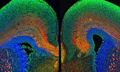 Breakdown in communication.....the differences between a typical brain (left) and Autism (right). Univ of Edinburgh