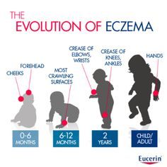 "The ""evolution"" of eczema , informational."