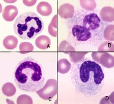 A: matured seg  C: late band cell normally have white cytoplasm with pink granules, long fairly narrow nuclei and tightly condensed chromatin.  Segmented and band neutrophils with toxic change (B, D) have less condensed chromatin than their normal counterparts and bluer cytoplasm due to retention of ribosomal RNA