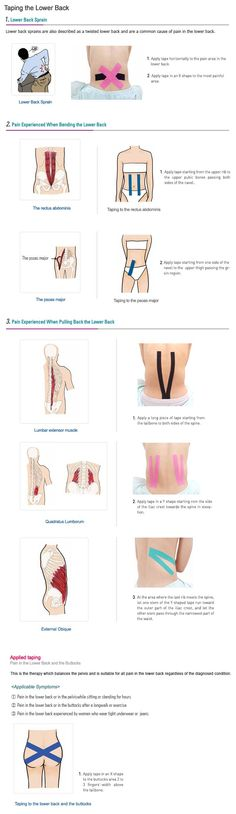 Kinesio Taping Instruction For Back Pain: