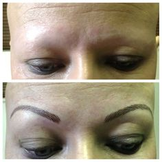 Eyebrow Embroidery is perfect for cancer and alopecia  sufferers .