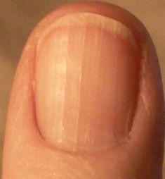 Vertical Fingernail Ridges And Remedies