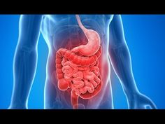 Crohn's Controversy: Cause, Vaccine and Anti-MAP Therapy - YouTube