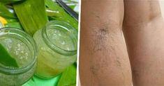 gel aloe vera vene varicose