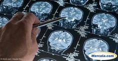 El Alzheimer comparte muchos factores de riesgo con la enfermedad del corazón, el tabaquismo, el consumo de alcohol, la diabetes, y mucho más. http://articulos.mercola.com/sitios/articulos/archivo/2016/10/27/factores-ambientales-de-riesgo-de-dementia.aspx