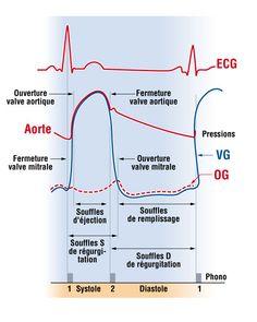 Classification des souffles cardiaques avec leur place dans le cycle cardiaque S: systolique, D: diastolique, VG: ventricule gauche, OG: oreillette gauche, les chiffres indiquent les bruits du cœur.  - next picture