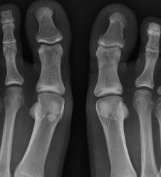 Bipartite hallux sesamoid | Radiology Case | Radiopaedia.org
