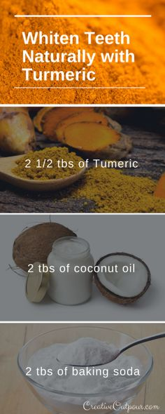 Natural Teeth Whitening Remedies Try this recipe to whiten your teeth naturally with tumeric. Teeth Whitening Remedies, Natural Teeth Whitening, Whitening Kit, Skin Whitening, Invisalign, Activated Charcoal Teeth Whitening, Coconut Oil For Teeth, Tooth Sensitivity, Stained Teeth