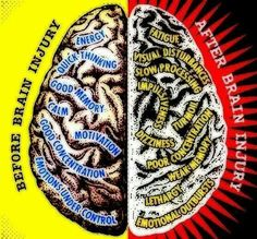 Brain Injury before and after