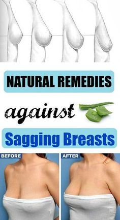 Natural Remedies against Sagging Breasts - Extra Beauty Tips